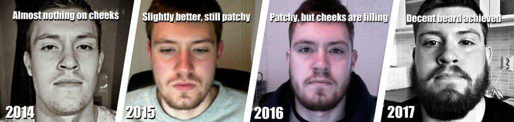 beard growth results