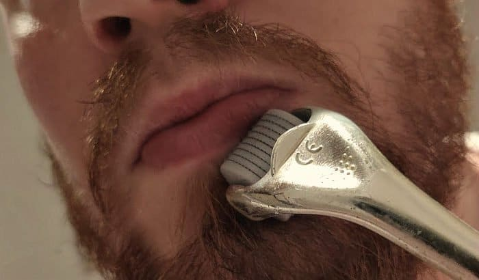 man dermarolling his beard area
