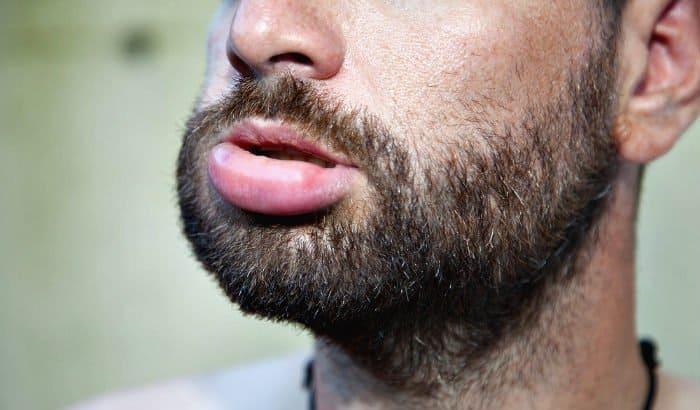 beard oil allergic reaction