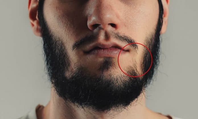 beard wont connect featured image