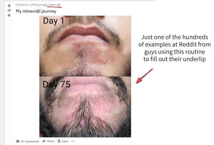 reddit beard underlip filling example