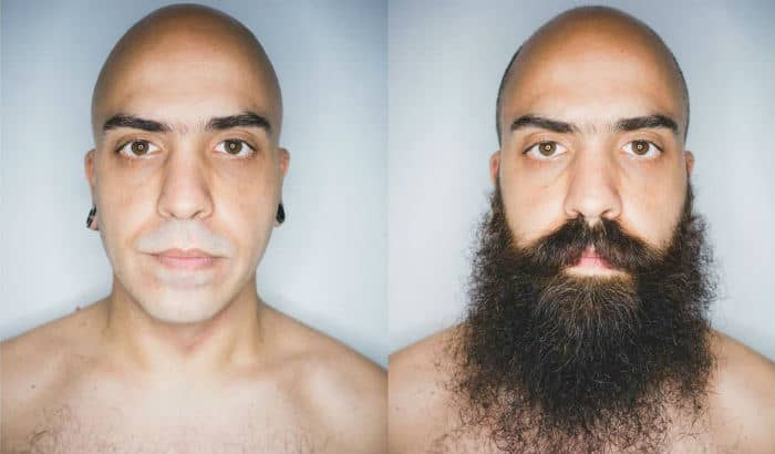 yeard before after