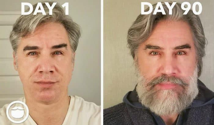 beard hide receding chin