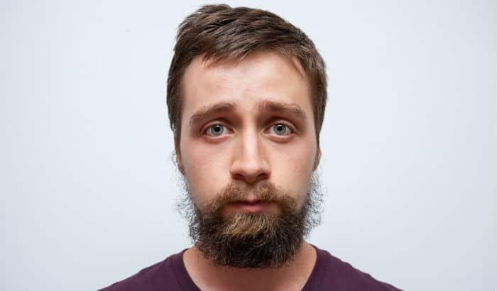 beard not growing well