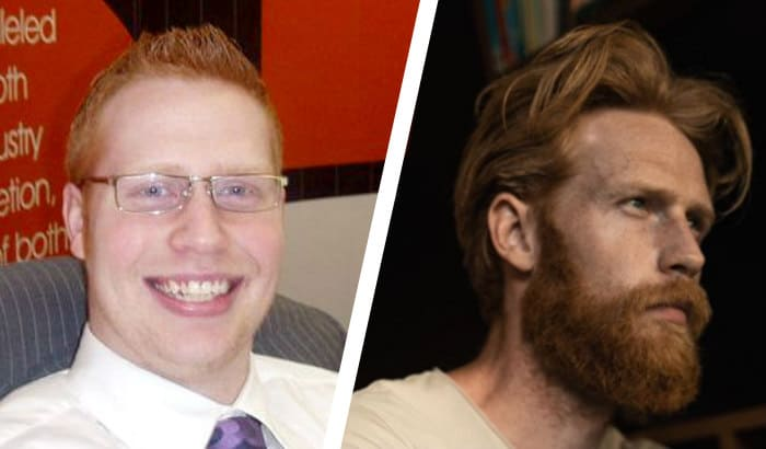 before after beard jawline