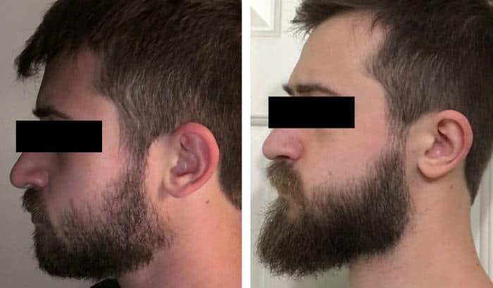 grow longer chin beard to improve jawline
