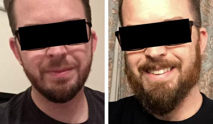 longer beard better jawline