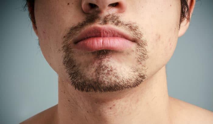 man cant grow full beard