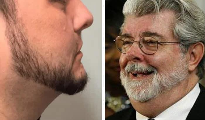 too high beard neckline