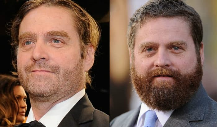 zach galinafkis no beard vs beard to hide double chin