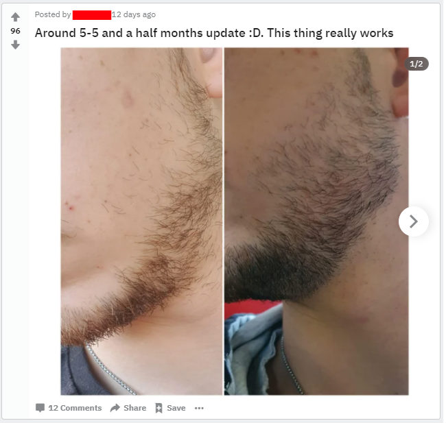 growing more cheek beard with minoxidil