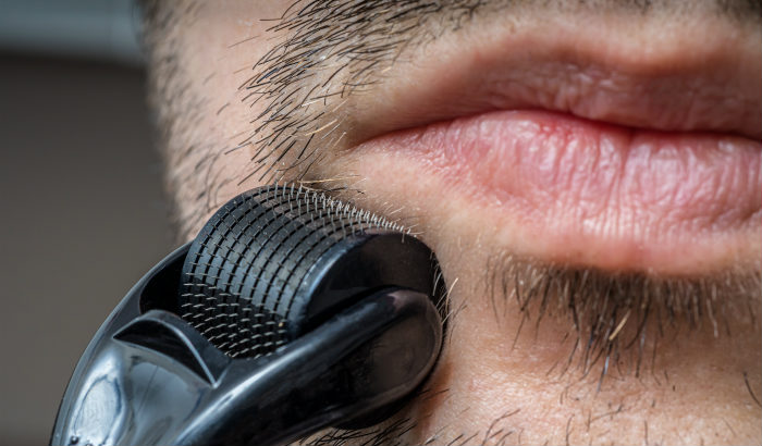 man using beard roller on mustache area