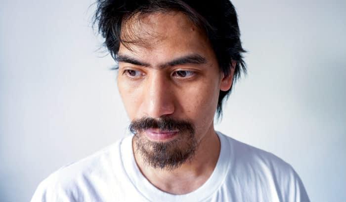 man with no beard growing on cheeks