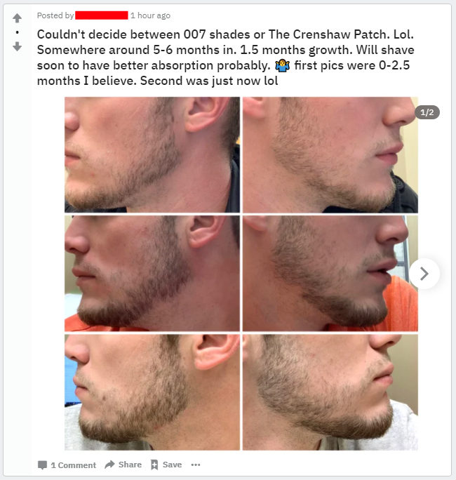 minoxidil to fix patchy cheek beard